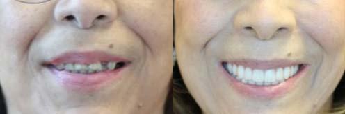 VIP Dental Implants